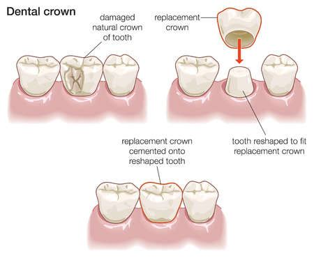 Dental Crowns Tijuana