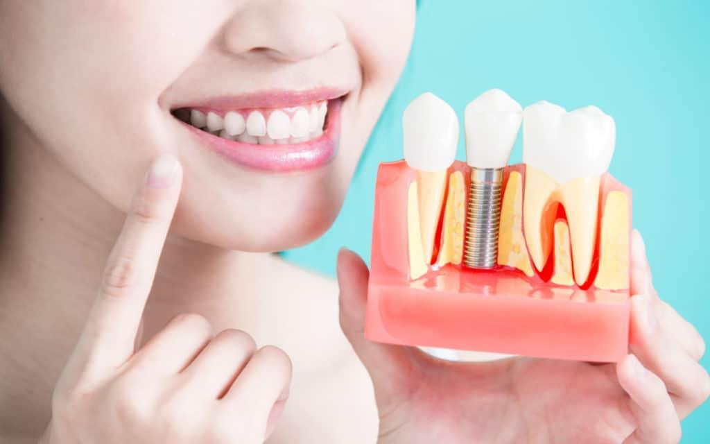 Dental Care in Mexico.
