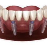 All on 4 Dental Implants in Tijuana