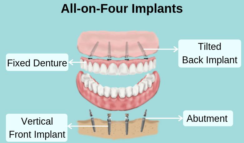 Dental Implants - Dental Image