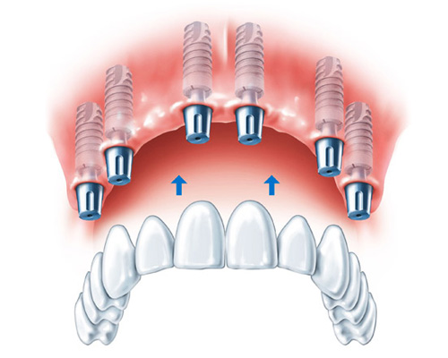 Dental Implant - Dental Image