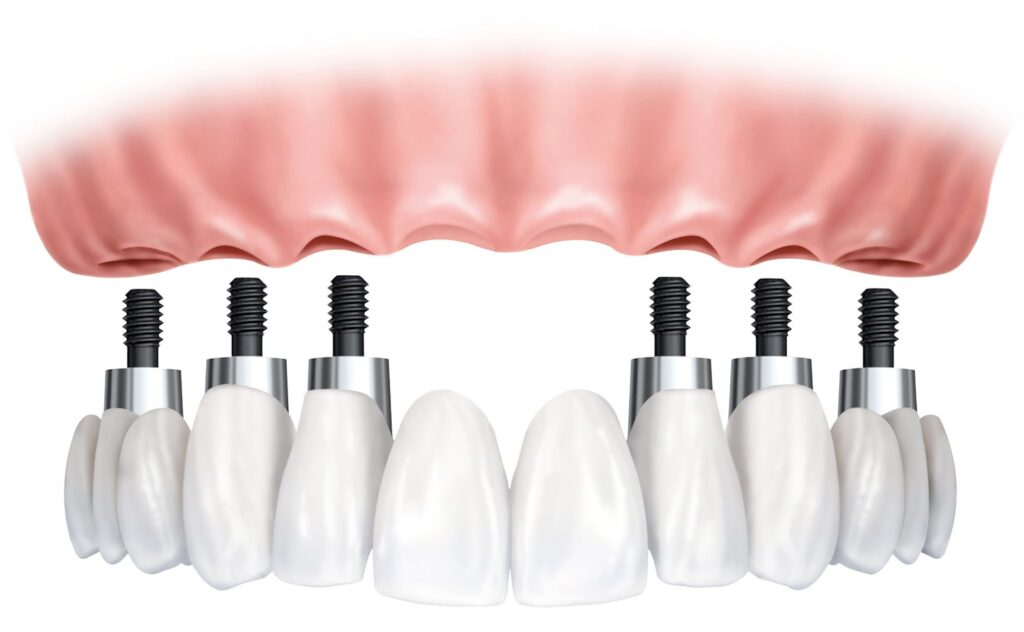 Dental implants in Tijuana