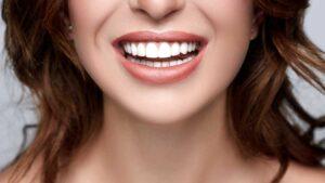 Top 10 Celebrity Smiles