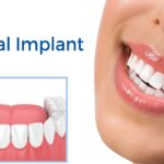 Dental Implants in Tijuana - Dental Image