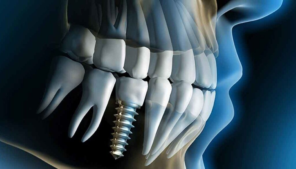 Dental Implant Cost in Tijuana