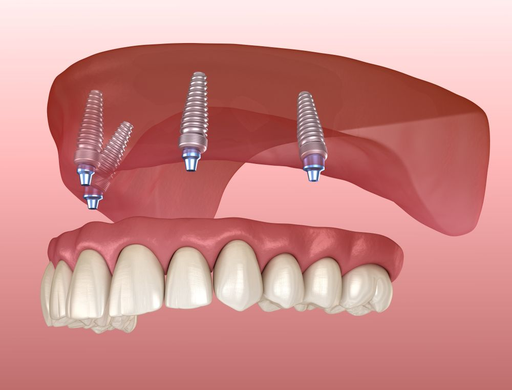 All-on-4 dental implants in Mexico