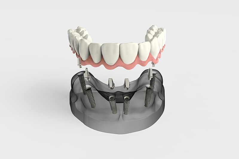 All-on-four-dental-implants in Mexico - Dental Image