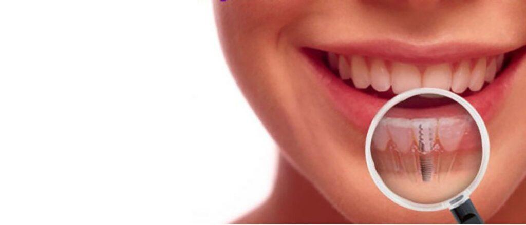 Dental Implants in Tijuana and Los Algodones - Dental Image