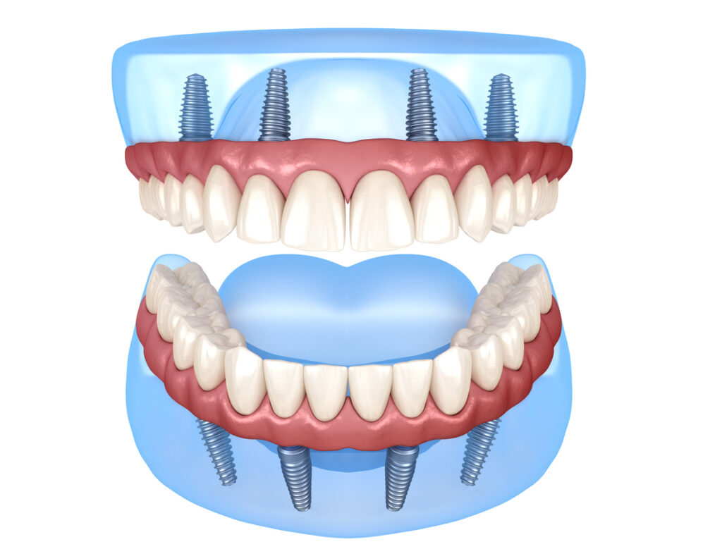 All-on-4 dental implants in Mexico - Dental Image