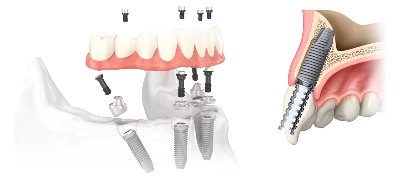All-in-4 Mexico Cost | Dental Image