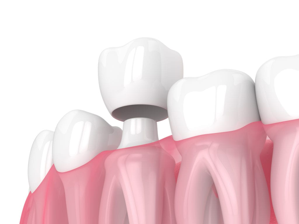 Dental Crown in Mexico | Dental Image