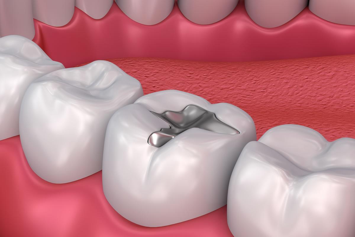 Dental Fillings in Mexico | Dental Image