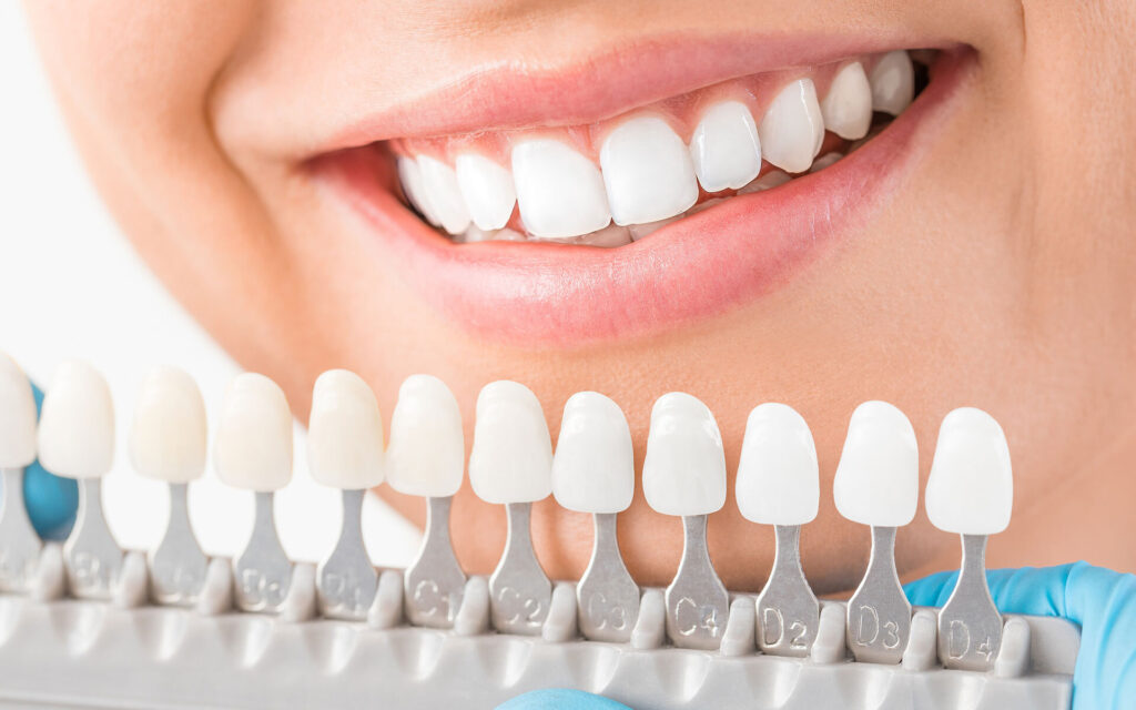 How Much Are Dental Implants in Tijuana? | Dental Image