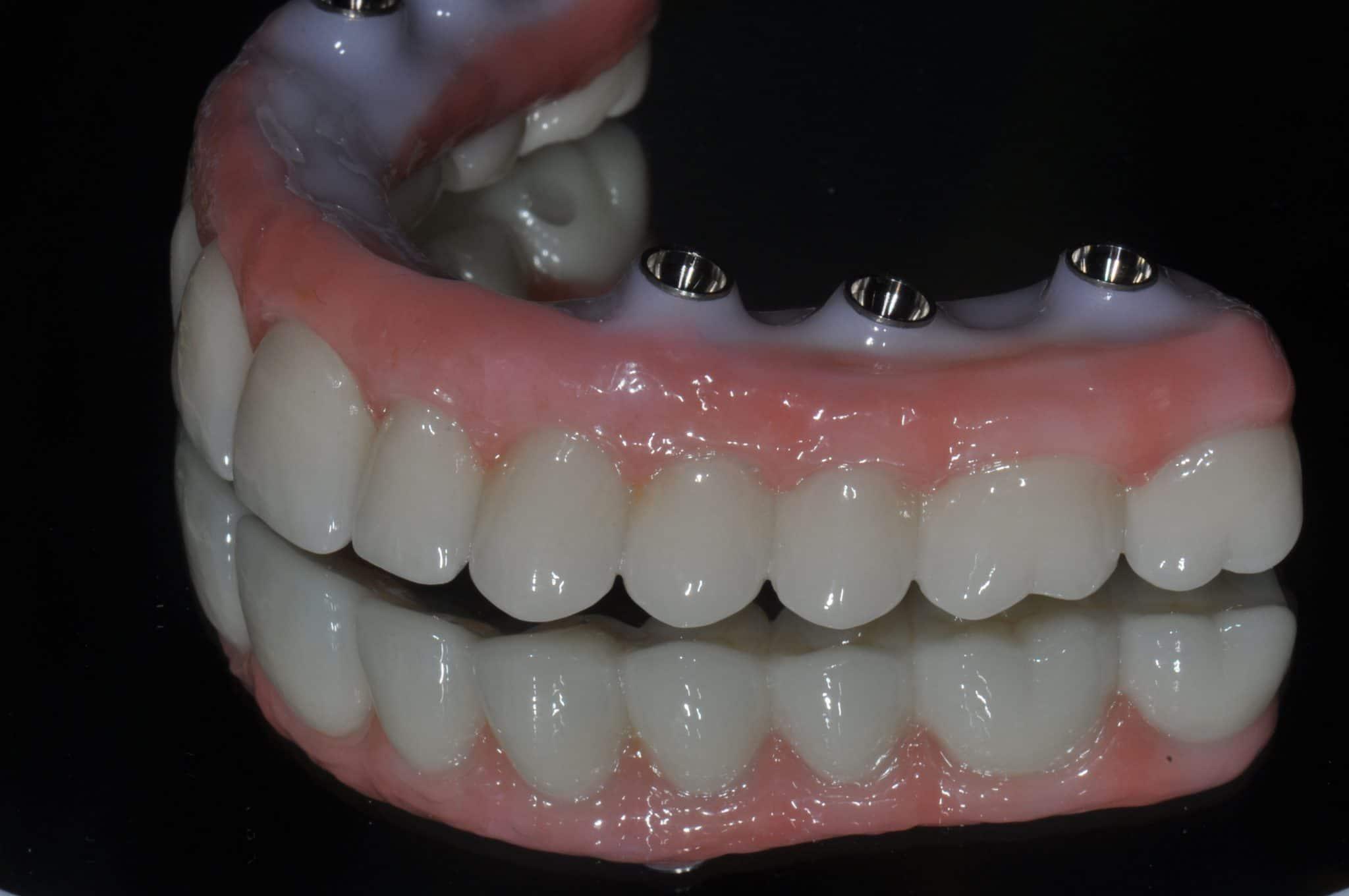 Dental Implant Teeth - Dental Image