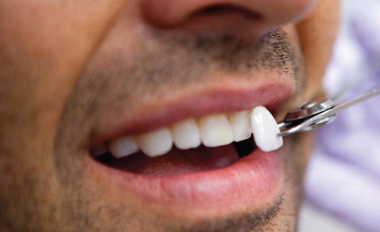 Dental Veneer in Mexico | Dental Image