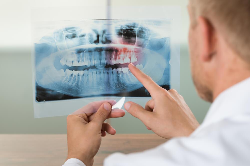 Dental Work in Mexico - Dental Image