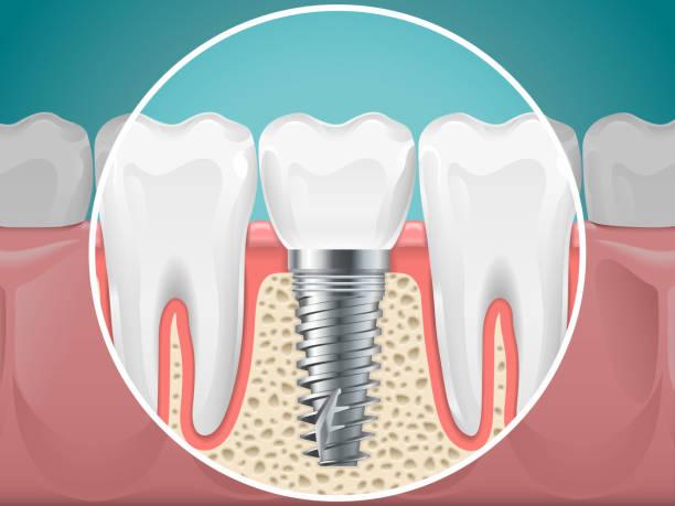 Dental Implants in Mexico - Dental Image