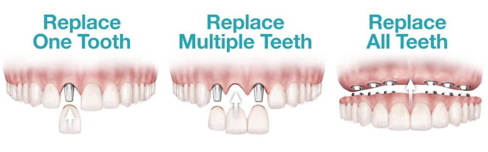 full mouth dental implants mexico