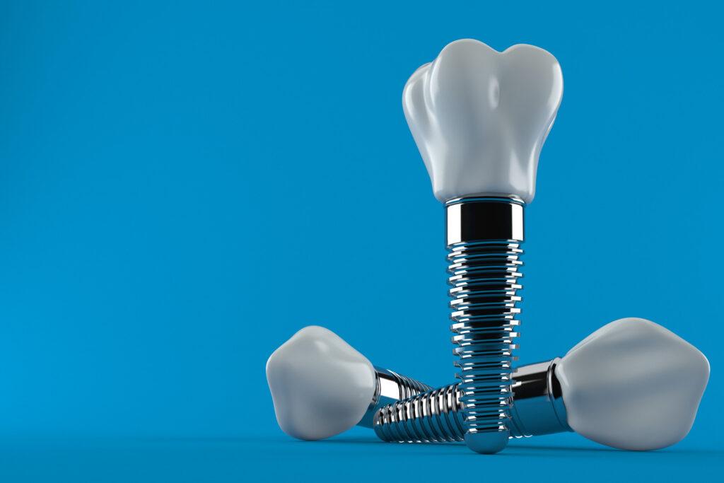 best dental implants mexico