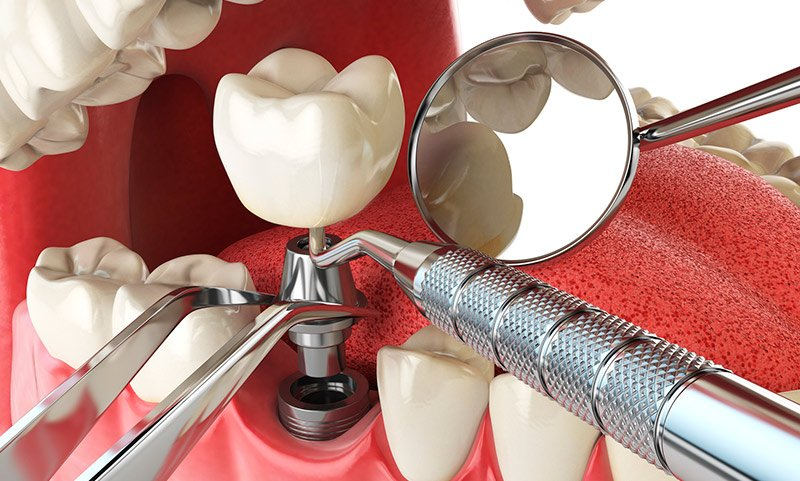 dental implants mexico cost