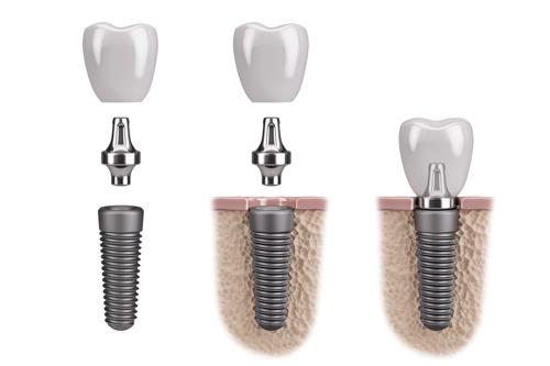 dental implants mexico tijuana